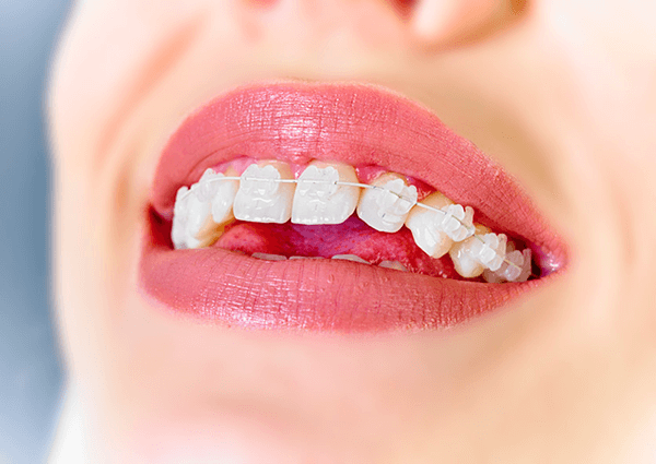 how to get straight teeth quick